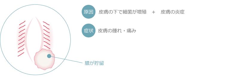 バルトリン腺膿瘍図