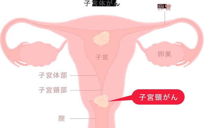 子宮体がん